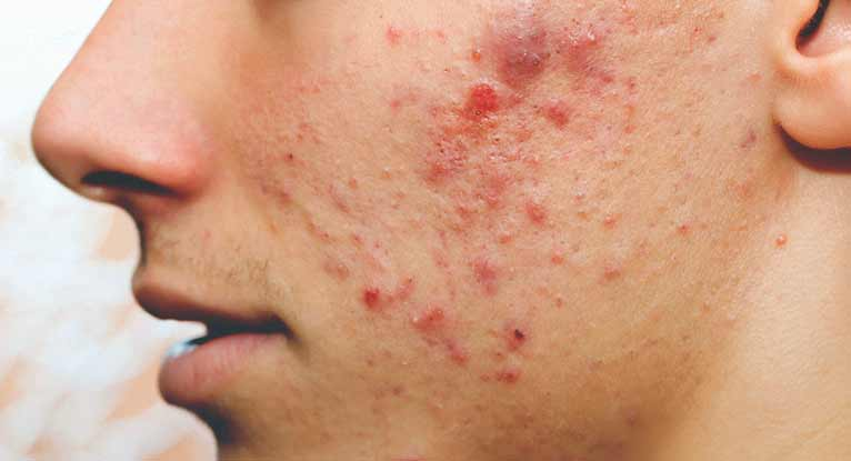 Acne and Pimples from healthline